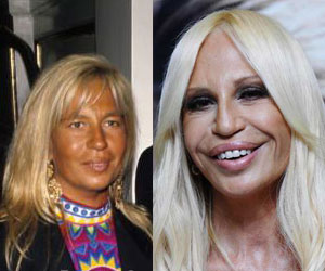 http://www.kvkstudio.ru/img/donatella_before.jpg